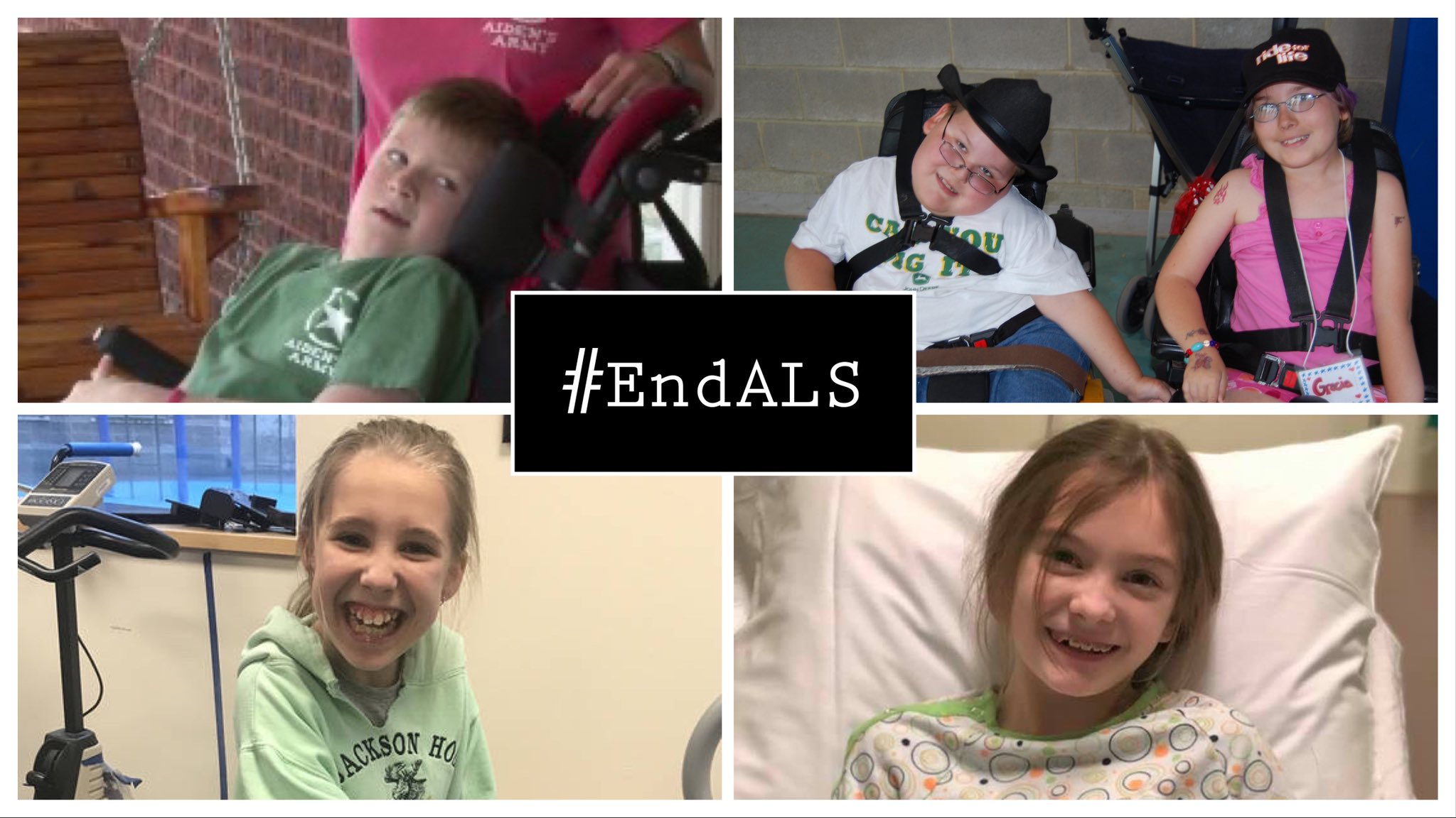 ALS (amyotrophic lateral sclerosis) - A chronic and progressive motor neuron disease characterized by the degeneration of nerve cells that control voluntary movement.